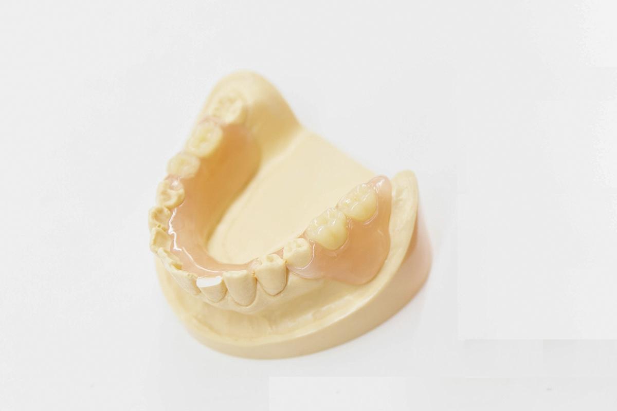 金具を使わない、見栄えの良い入れ歯をご用意しています